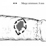 lesionpenis